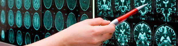 Neurociencia en el Contexto de la Guerra